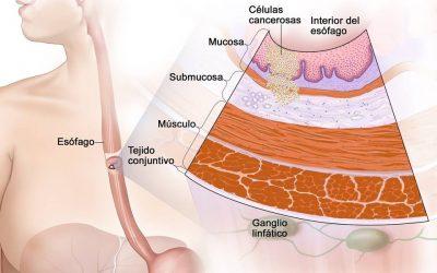 Tratamiento del cáncer de esófago (PDQ) Versión para pacientes